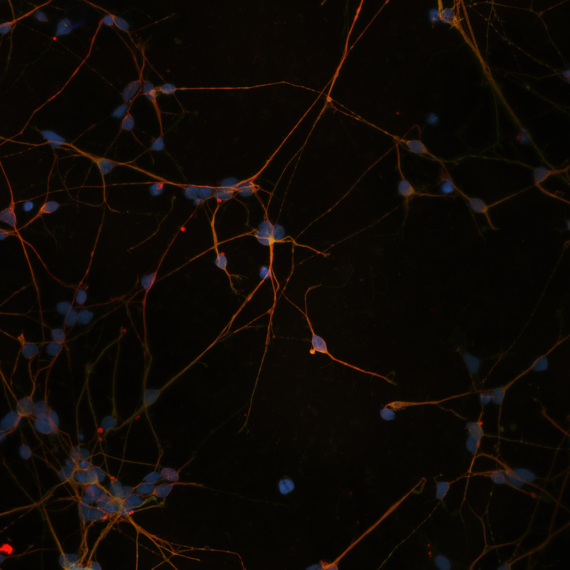 GurdonBrain cells LR.jpg