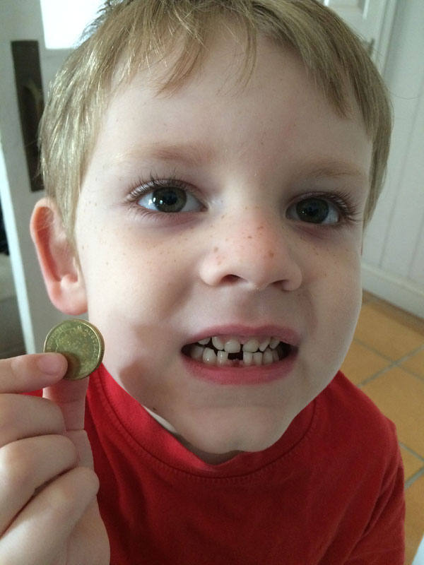 Henry boy lost his first tooth! He was super excited that the tooth fairy didn't forget to put a gold coin under his pillow that night. Silly fairy forgot to put a coin under Lily's pillow the following week... twice! Oops!