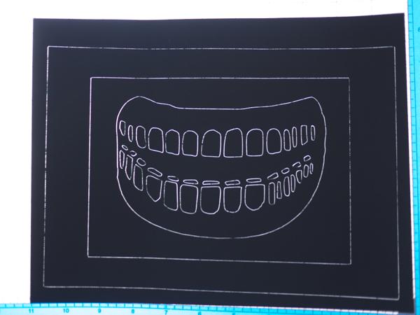 dover_teeth_a_1.jpg