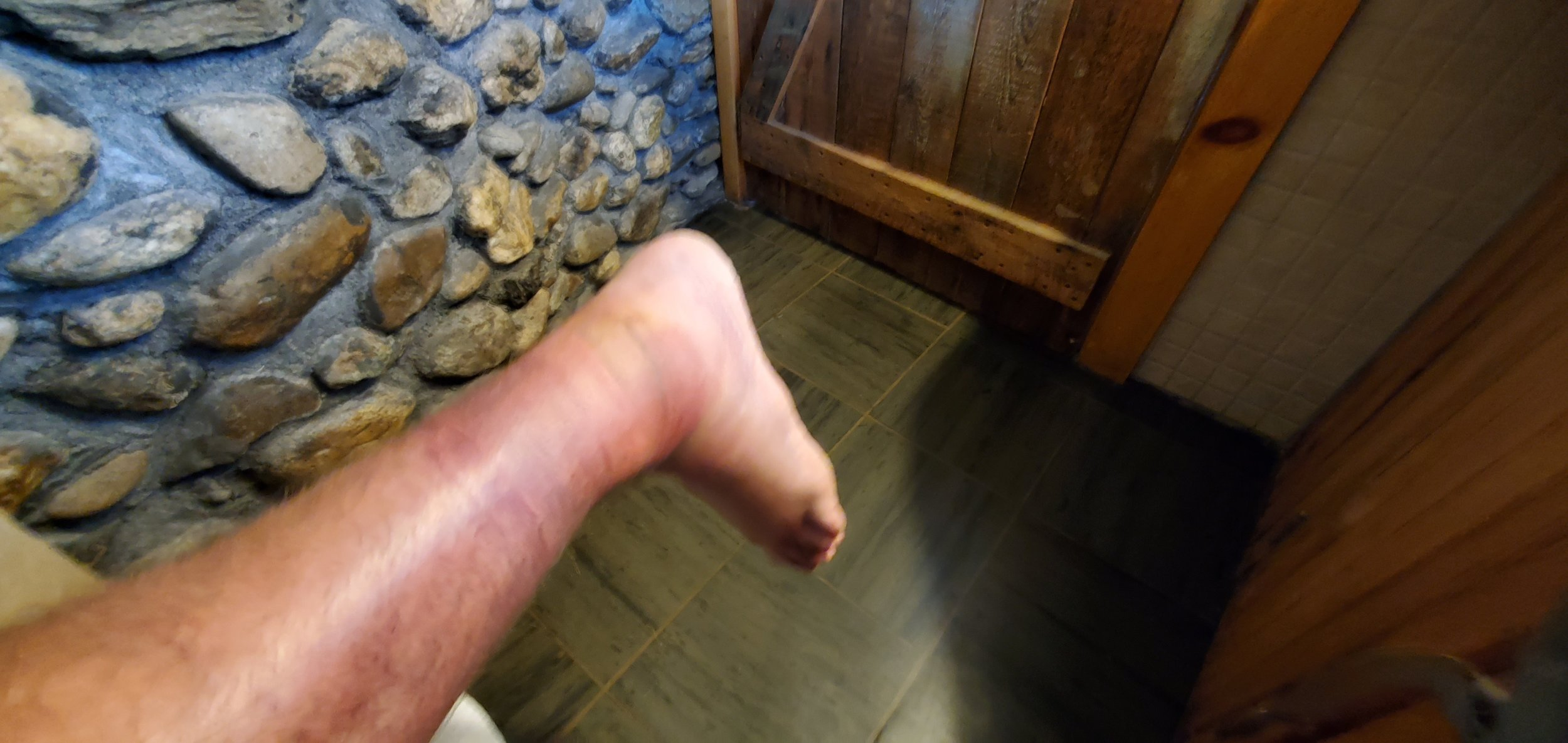 Here's what the ankle looked like later on. Yeah… it was pretty haggard.