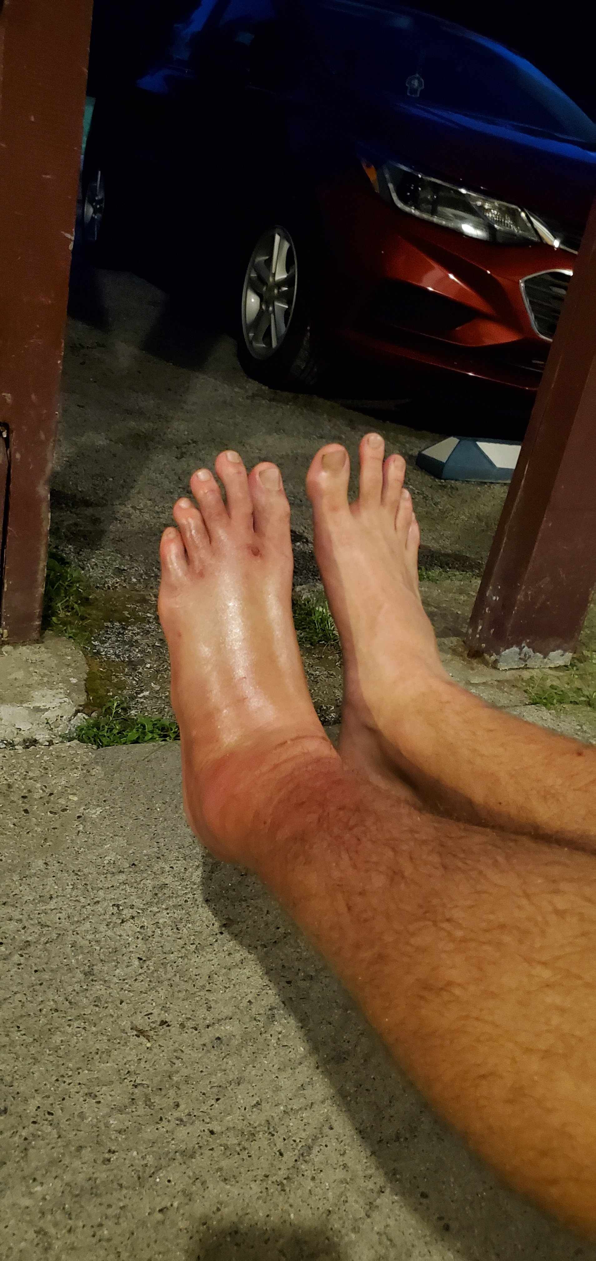 What it looked like in comparison to my normal ankle afterwards
