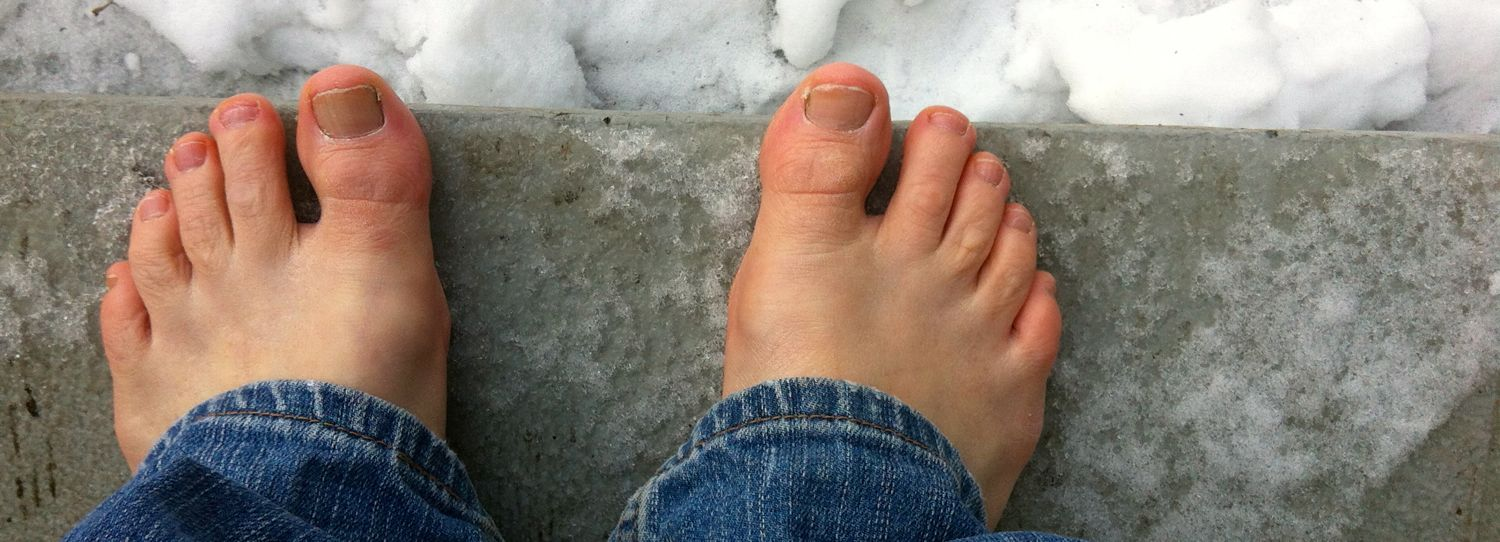 Icy toes