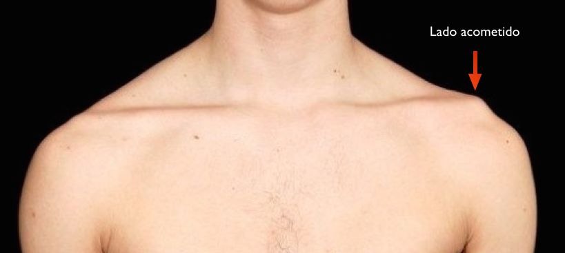 luxacaoacromioclavicular02