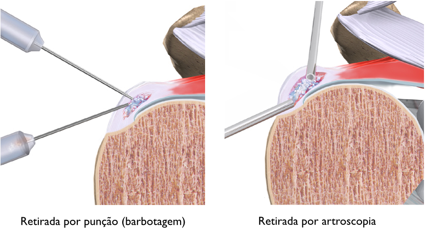 tendinitecalcaria03