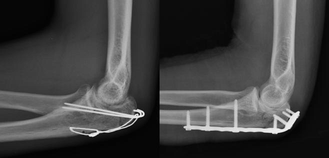Figura da esquerda: fixação com banda de tensão. Figura da direita: fixação com placa e parafusos.