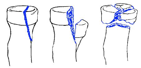 Tipos de fraturas da cabeça do rádio