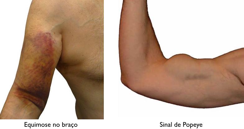 biceps02