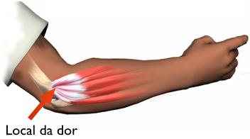 epicondilitelateral02