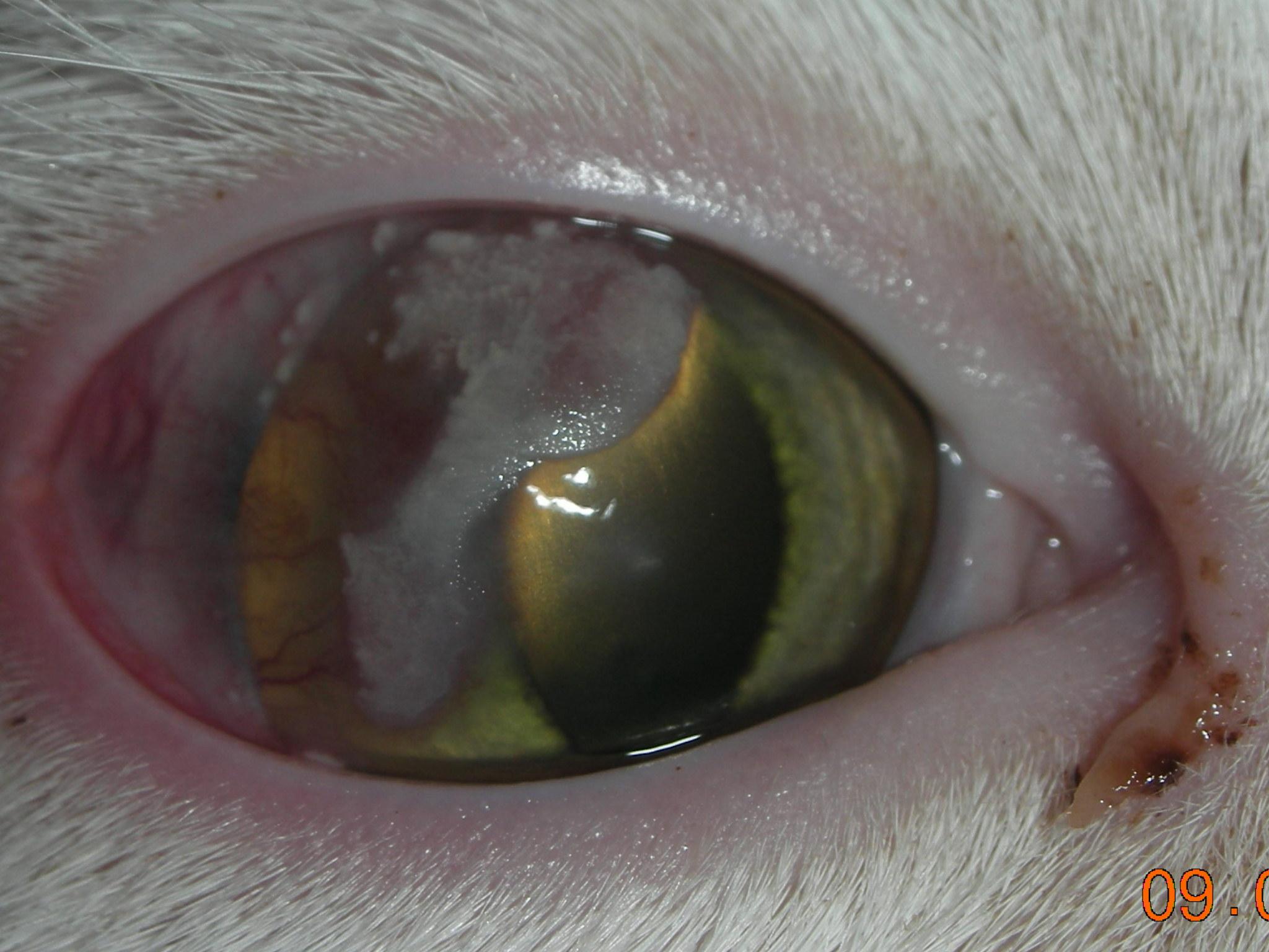 Eosinophilic Keratitis