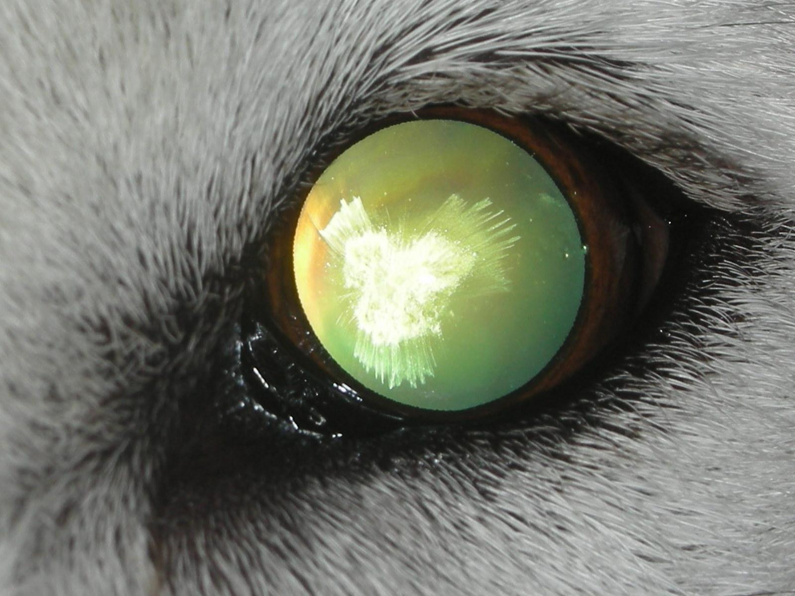 Cataract - suturial