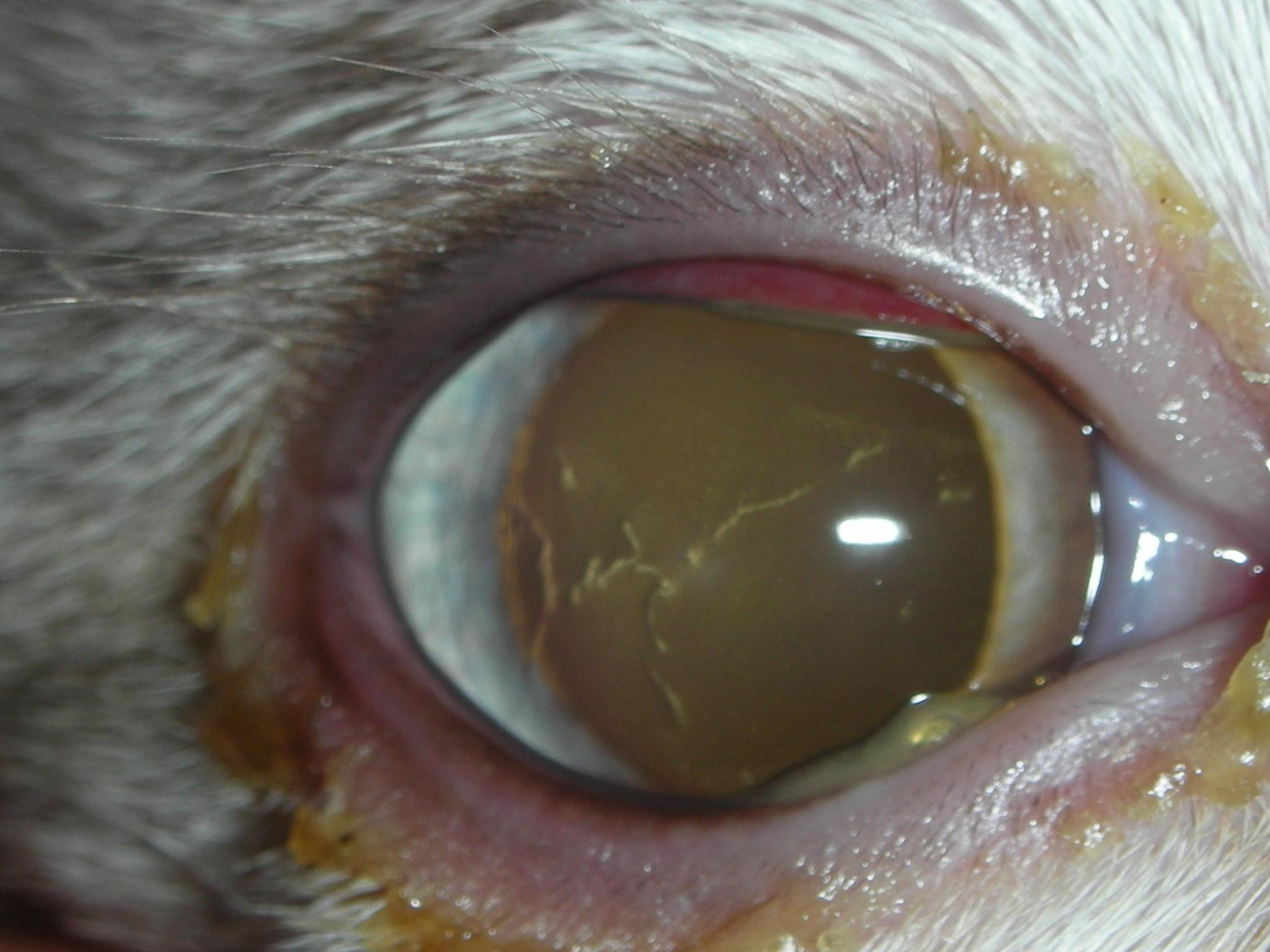Herpetic Ulcer