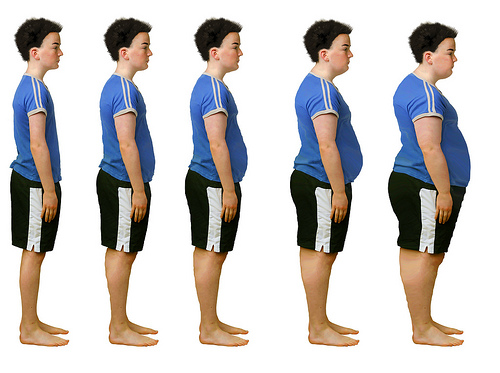 obesity and kideny damage_C.F.-03.05.13.jpg