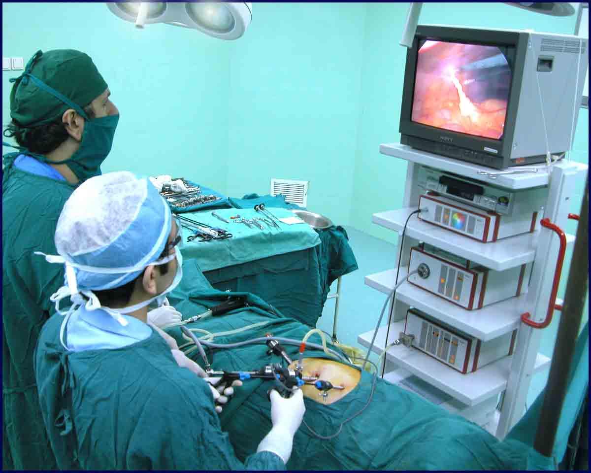 Laparoscopic Kidney Removal.jpg