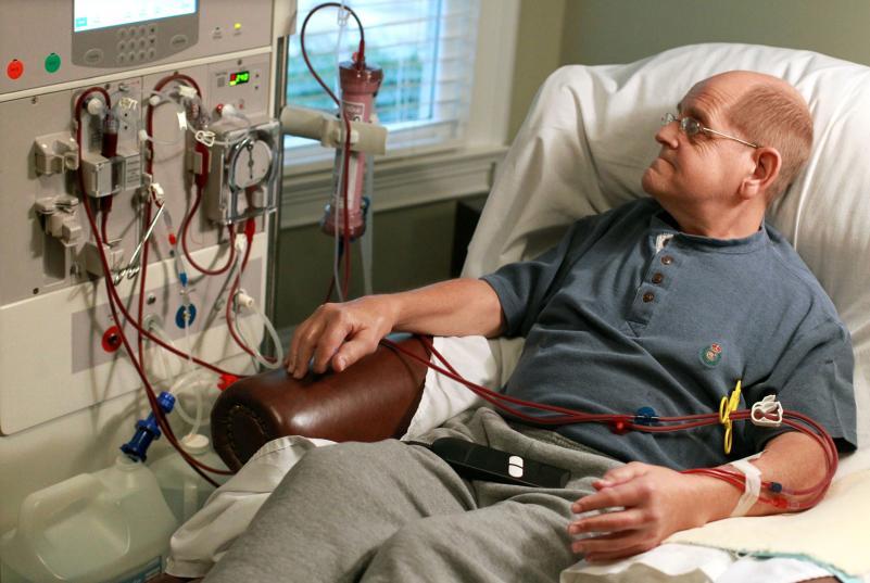 kidney failure treatment dialysis)