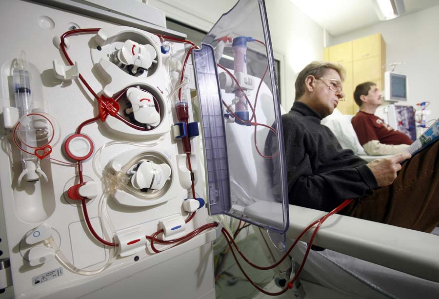 New Method For Conducting Dialysis Improves Treatments By 50 For Chronic Kidney Disease Patients Kidneybuzz