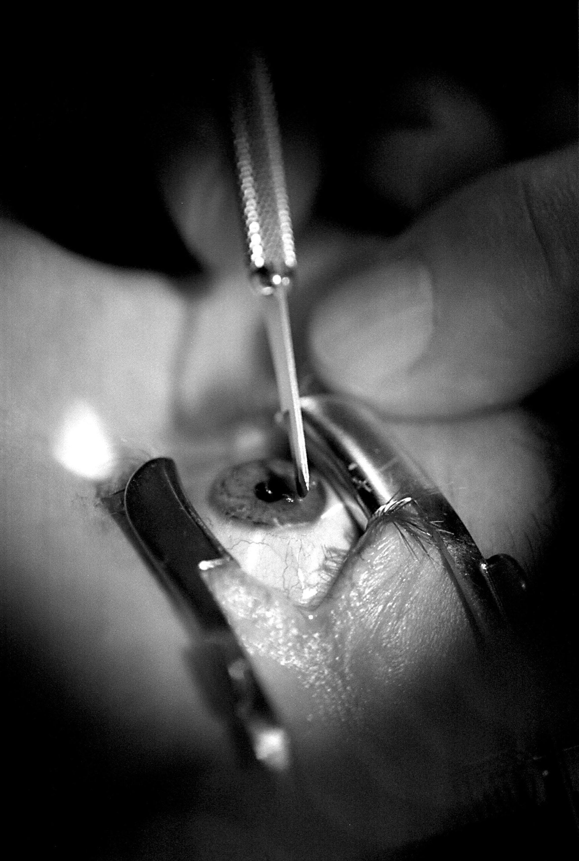 Eye Surgery shutterstock_2754277_2000.jpg