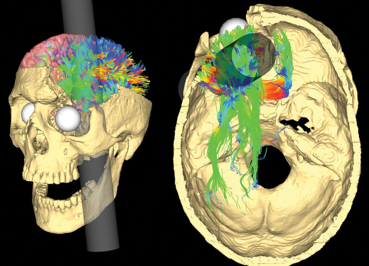 """Van Horn, J.D.; Irimia, A.; Torgerson, C.M.; Chambers, M.C.; Kikinis, R.; Toga, A.W. (2012).""""Mapping Connectivity Damage in the Case of Phineas Gage""""."""