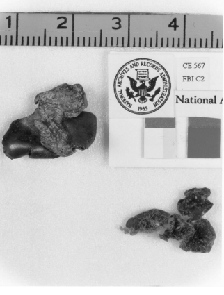 JFK Bullet Fragments.png