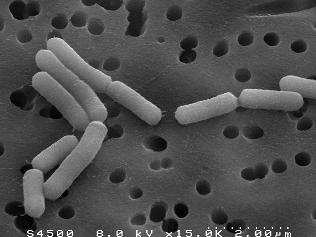 lactobacillus_casei_1.jpg