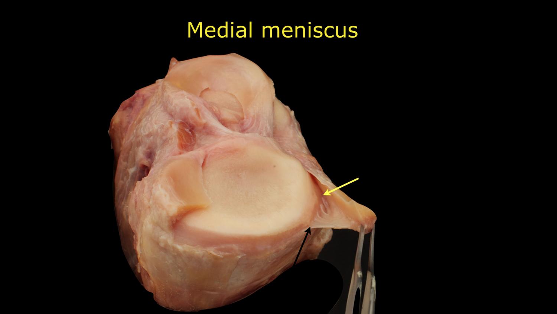 medial-meniscus-skirt-ligament.png