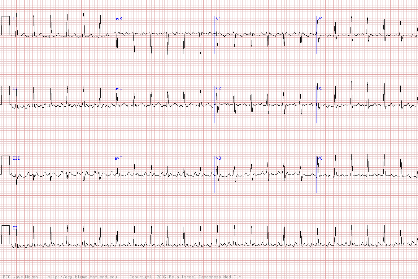 Atrial Flutter with 2 to 1 Block