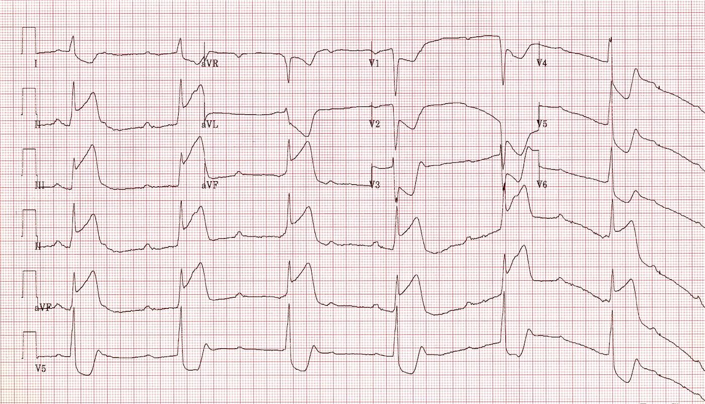 AV Block 3rd Degree (Complete Heart Block)
