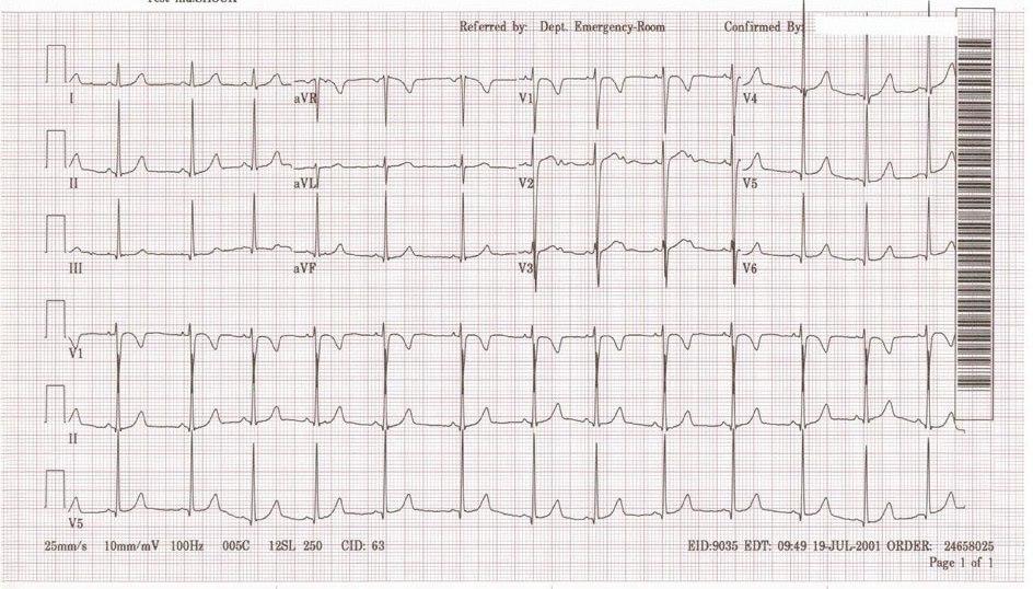 Pediatric Sinus Normal (x2)