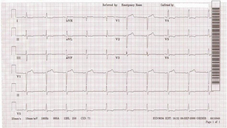 Sinus Bradycardia (x2)