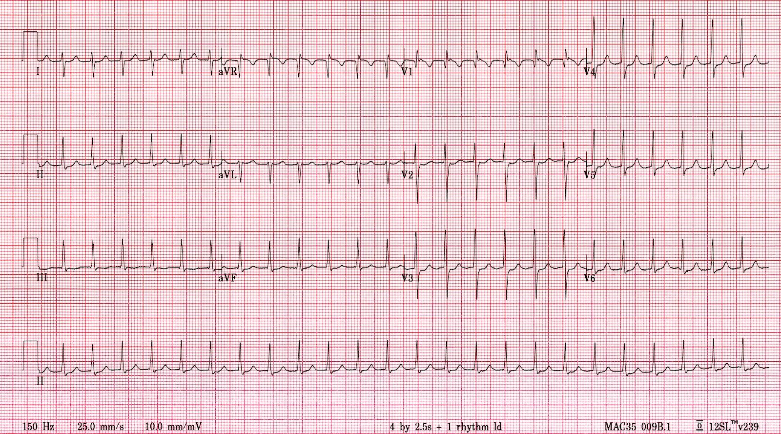 Supraventricular Tachycardia (SVT)