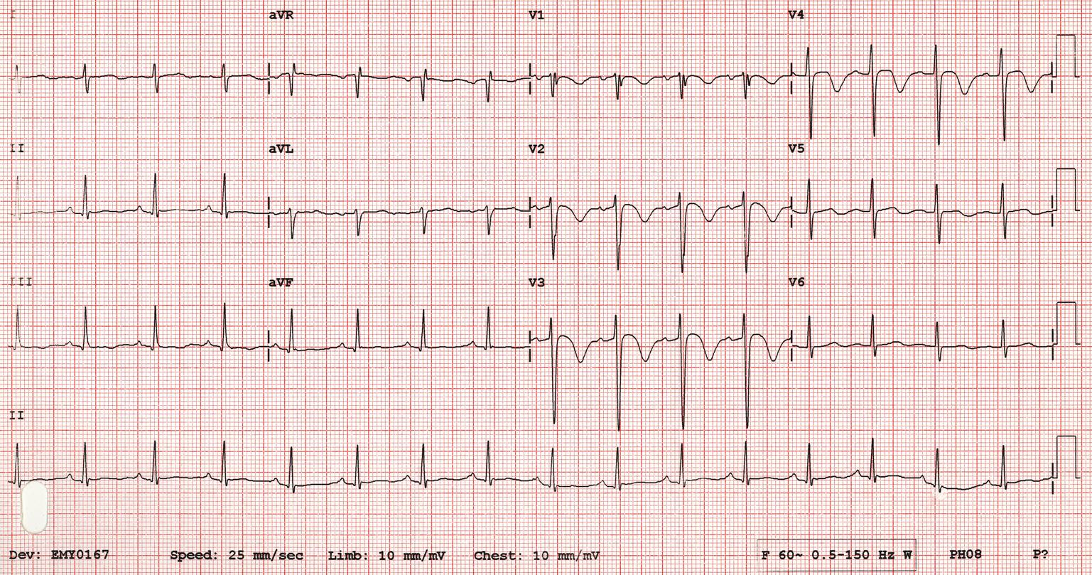Wellens' Syndrome Type A