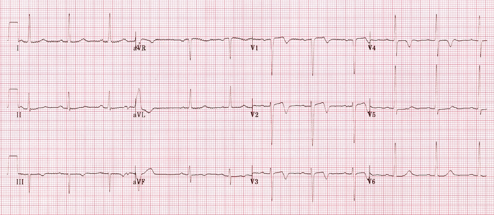 Wellens' Syndrome Type B
