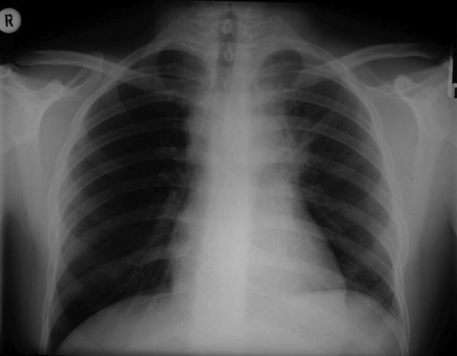 Aortic Dissection   X-ray (subtle)