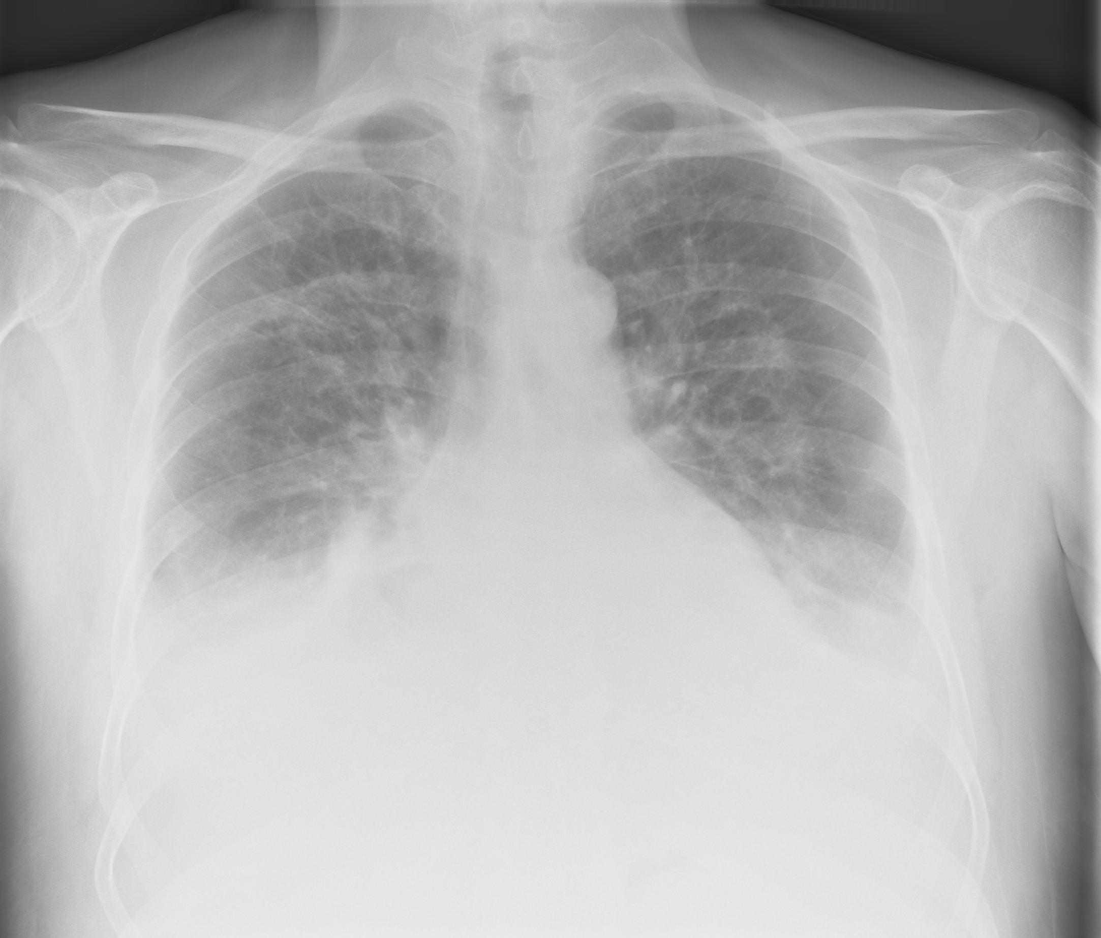 Fluid Levels Bilateral   X-ray (moderate)
