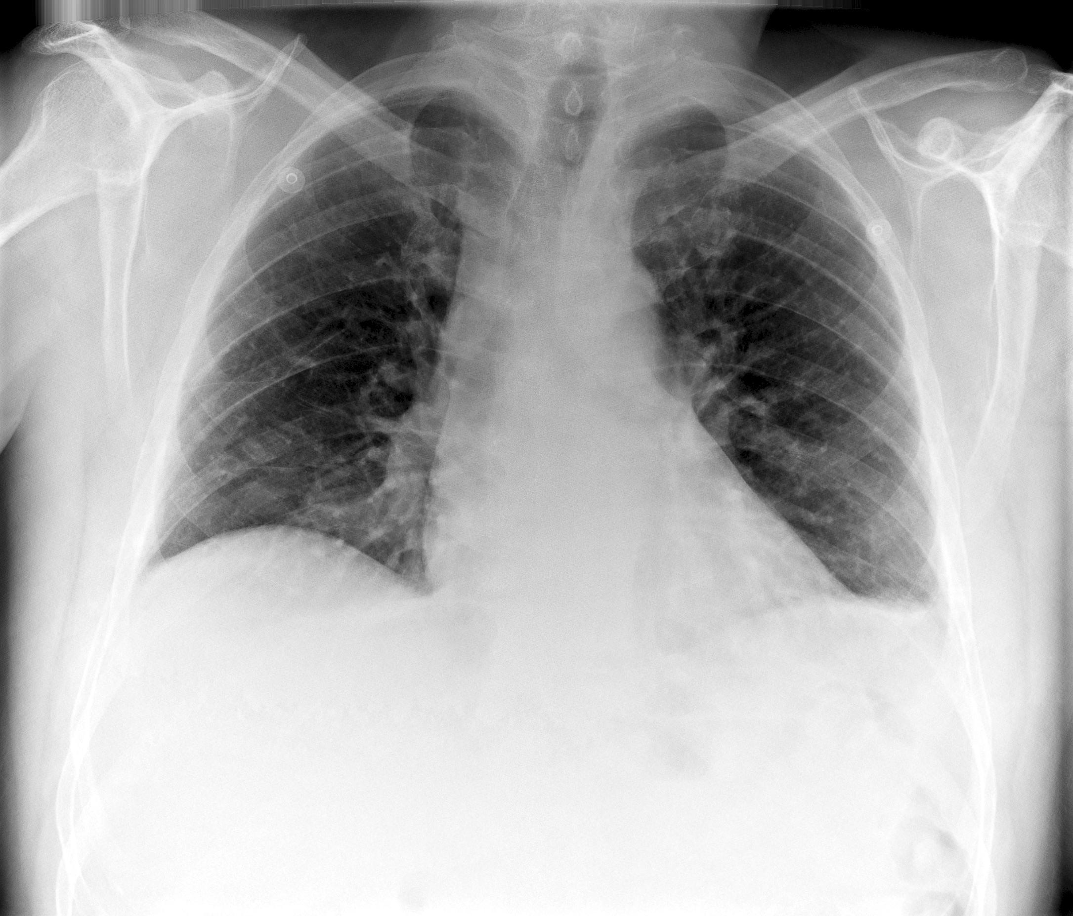 Fluid Levels Leftside   X-ray (mild)