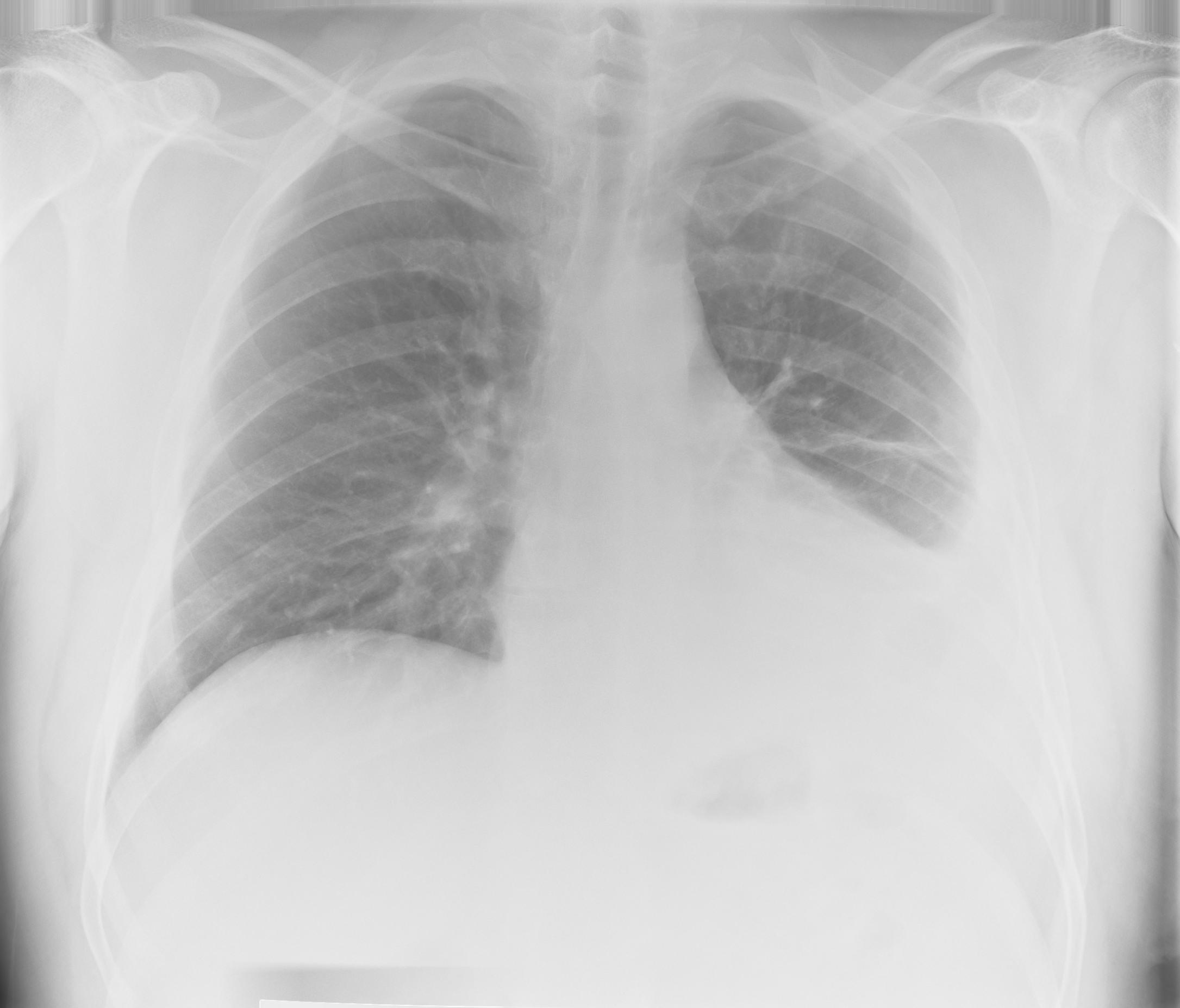 Fluid Levels Leftside   X-ray (moderate)