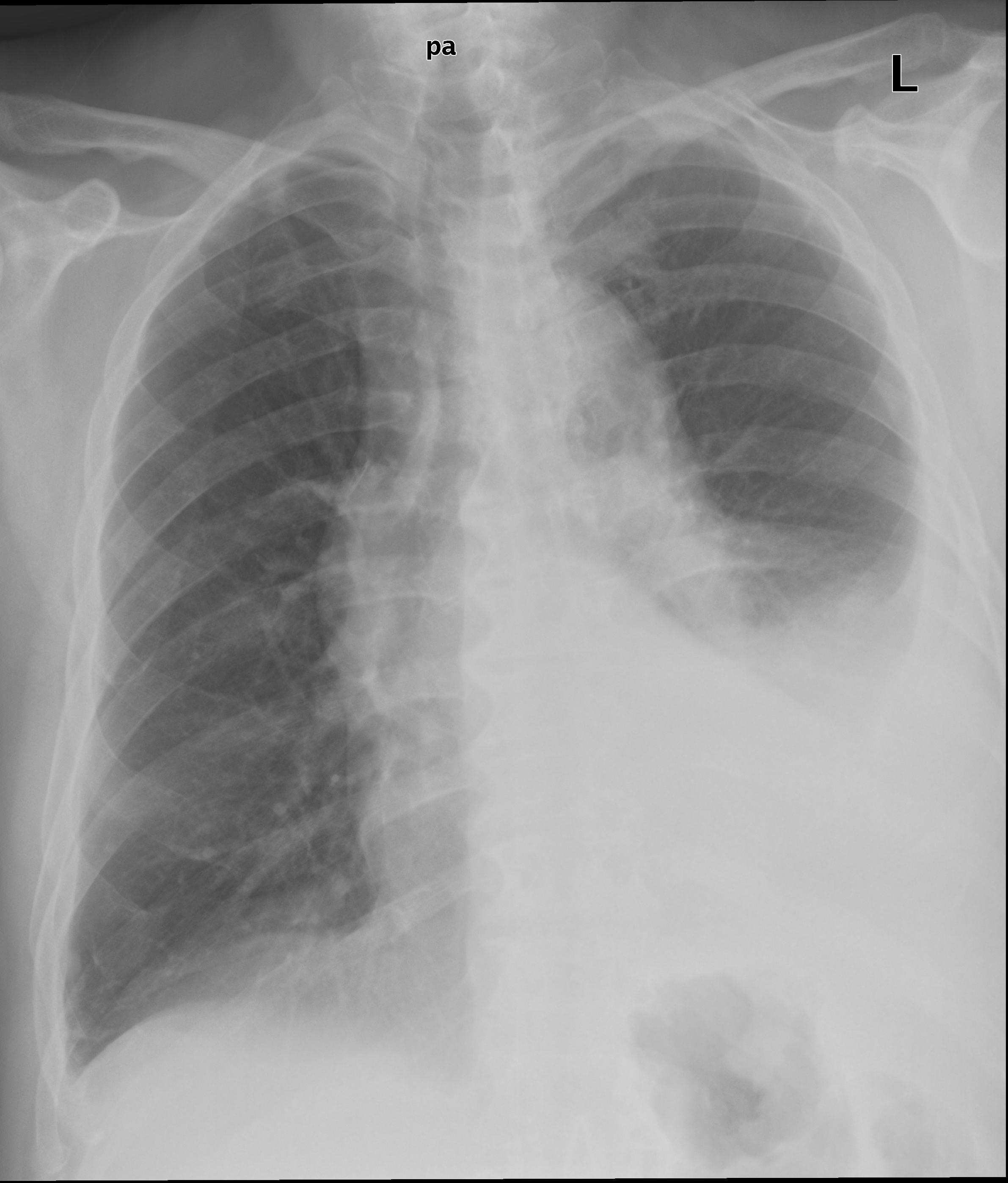 Fluid Levels Leftside   X-ray (severe)