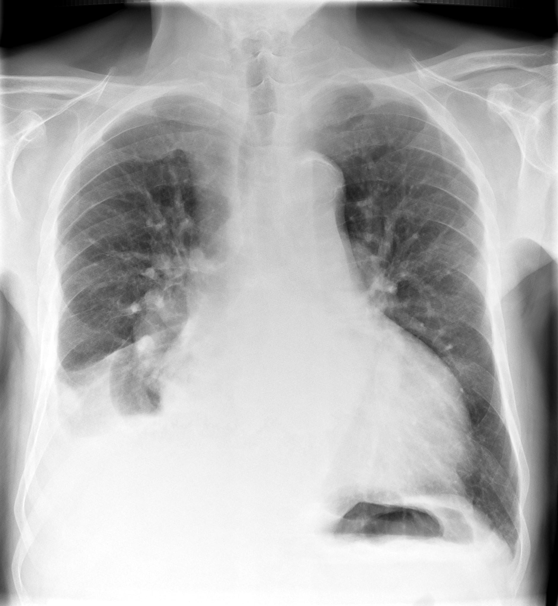 Fluid Levels Rightside   X-ray (moderate)
