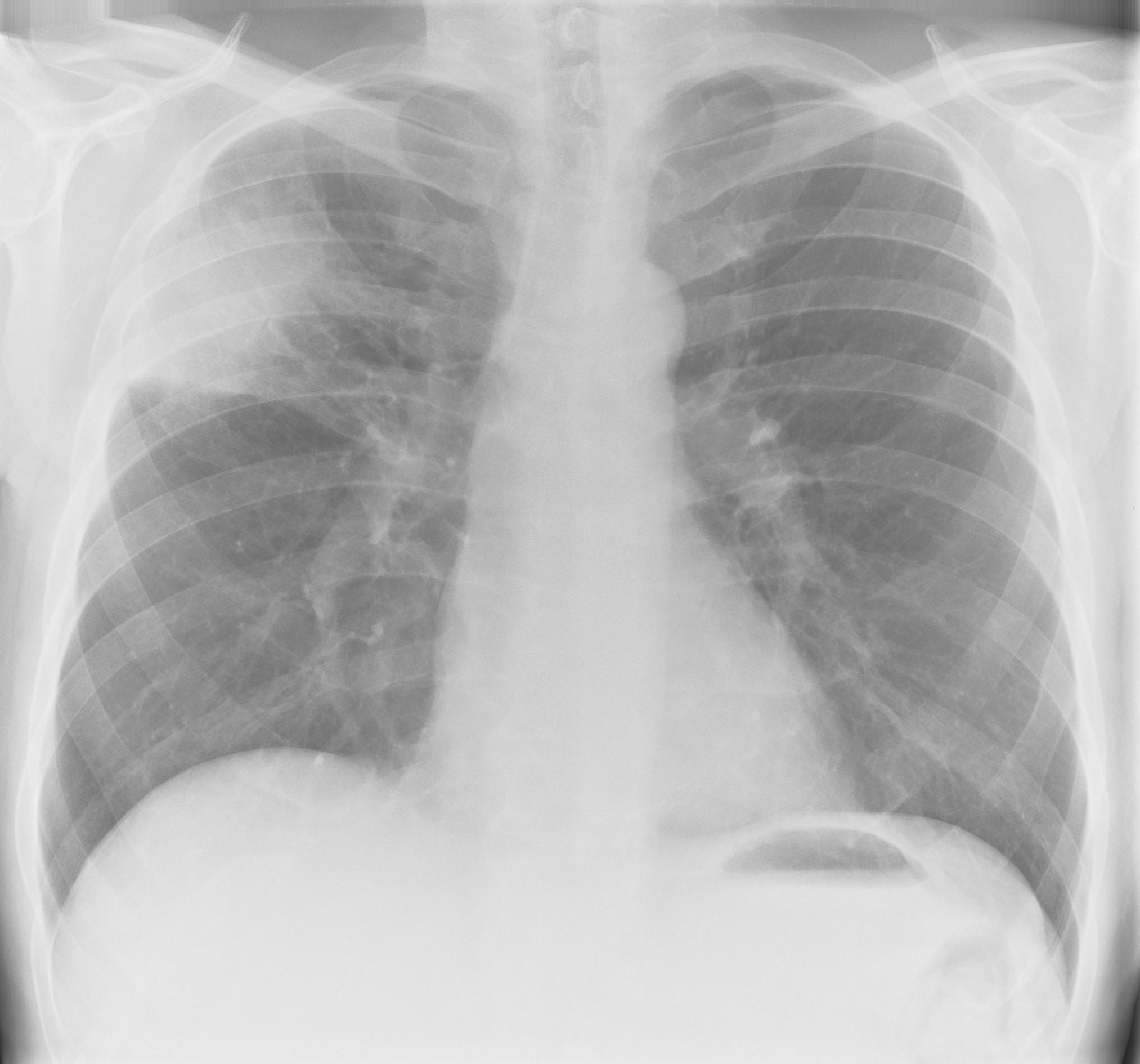 Pneumonia Rightside Segmental   X-ray 1
