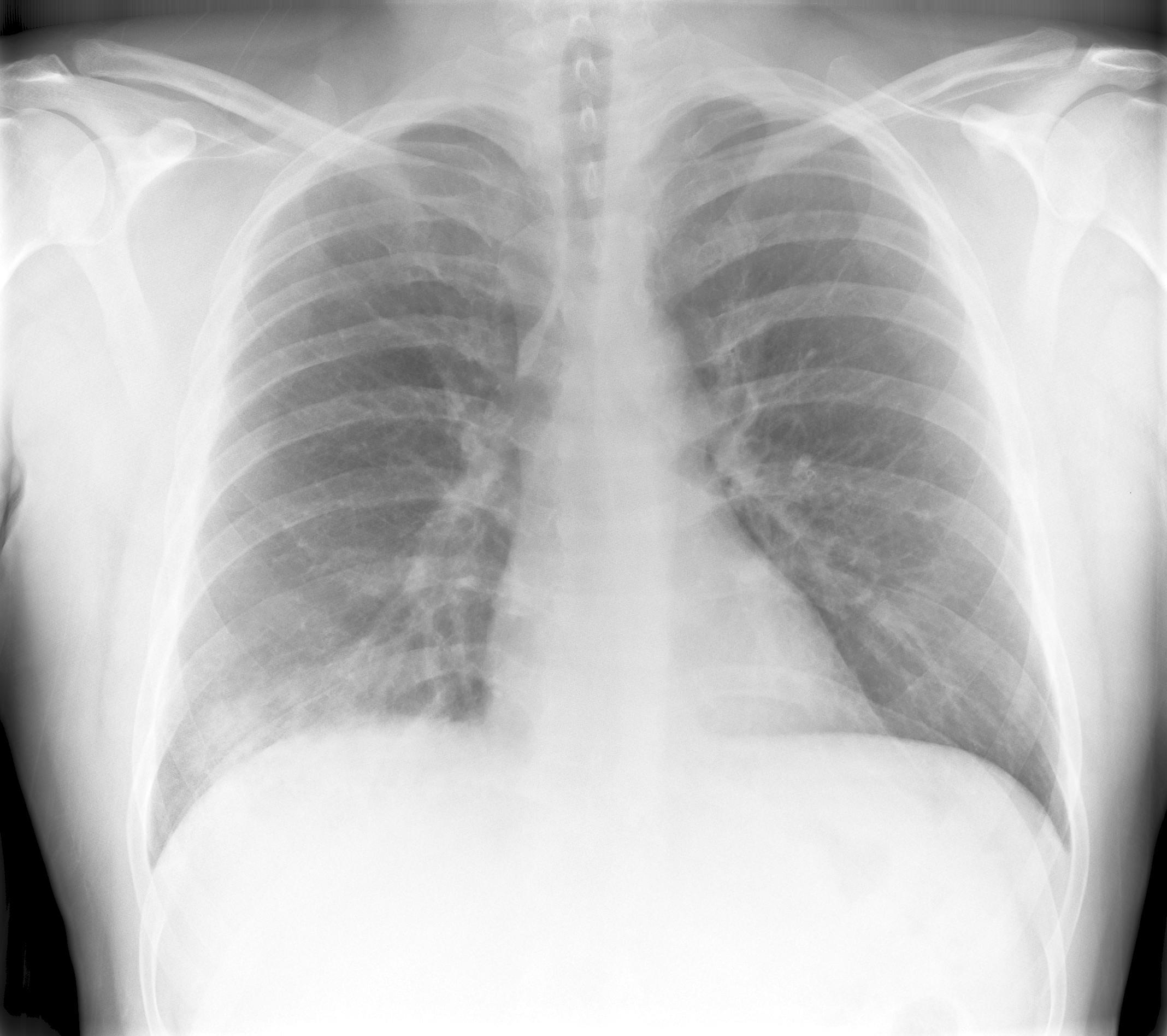 Pneumonia Rightside Segmental   X-ray 2