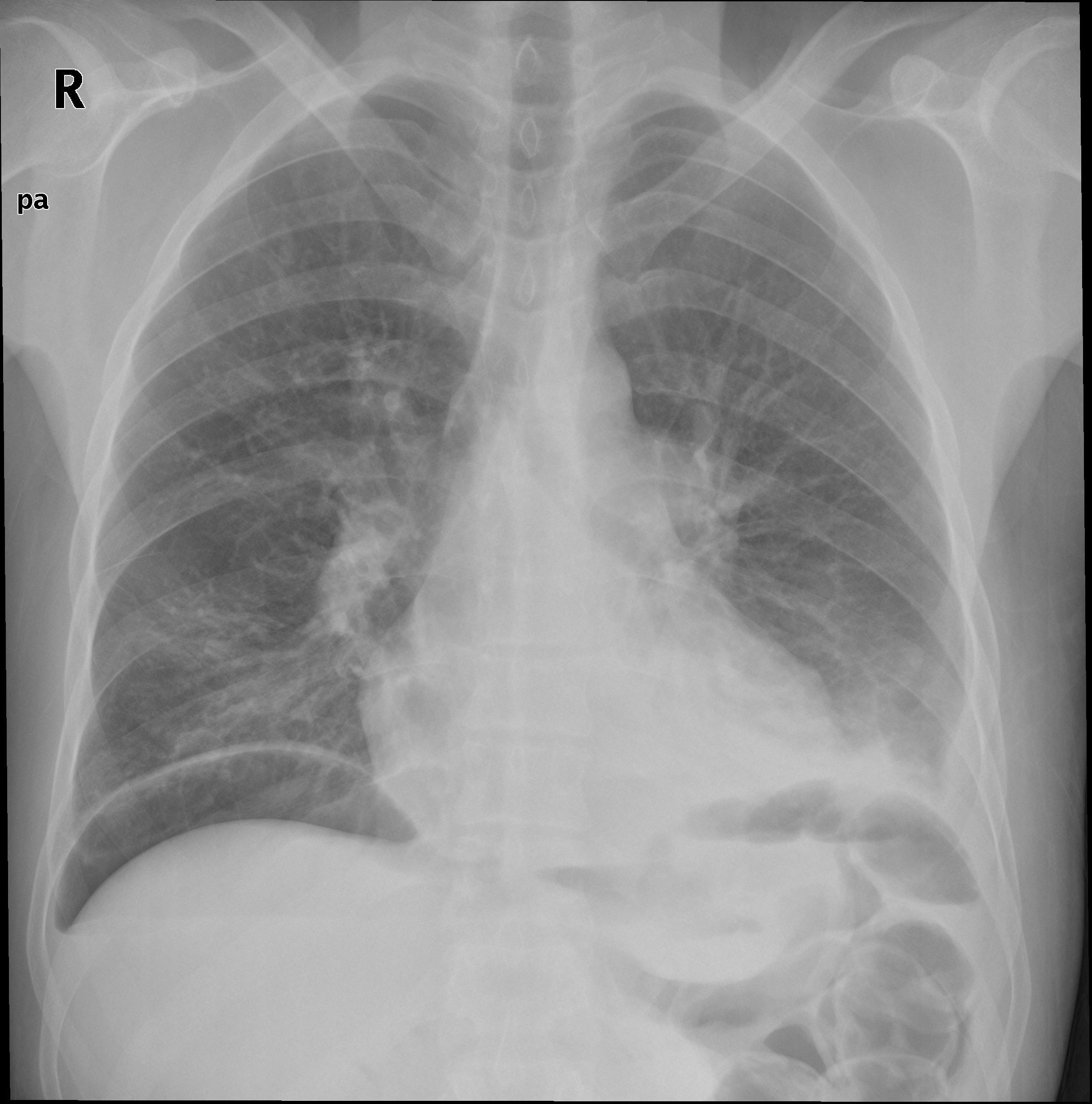 Pneumoperitonium X-ray