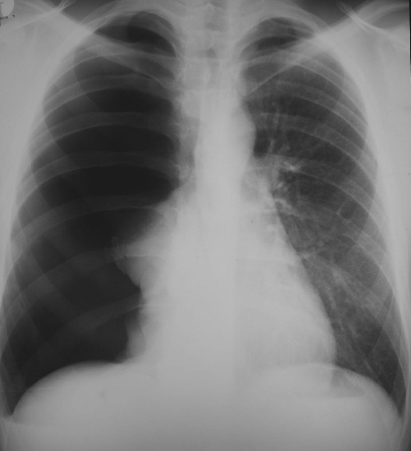 Pneumothorax X-ray