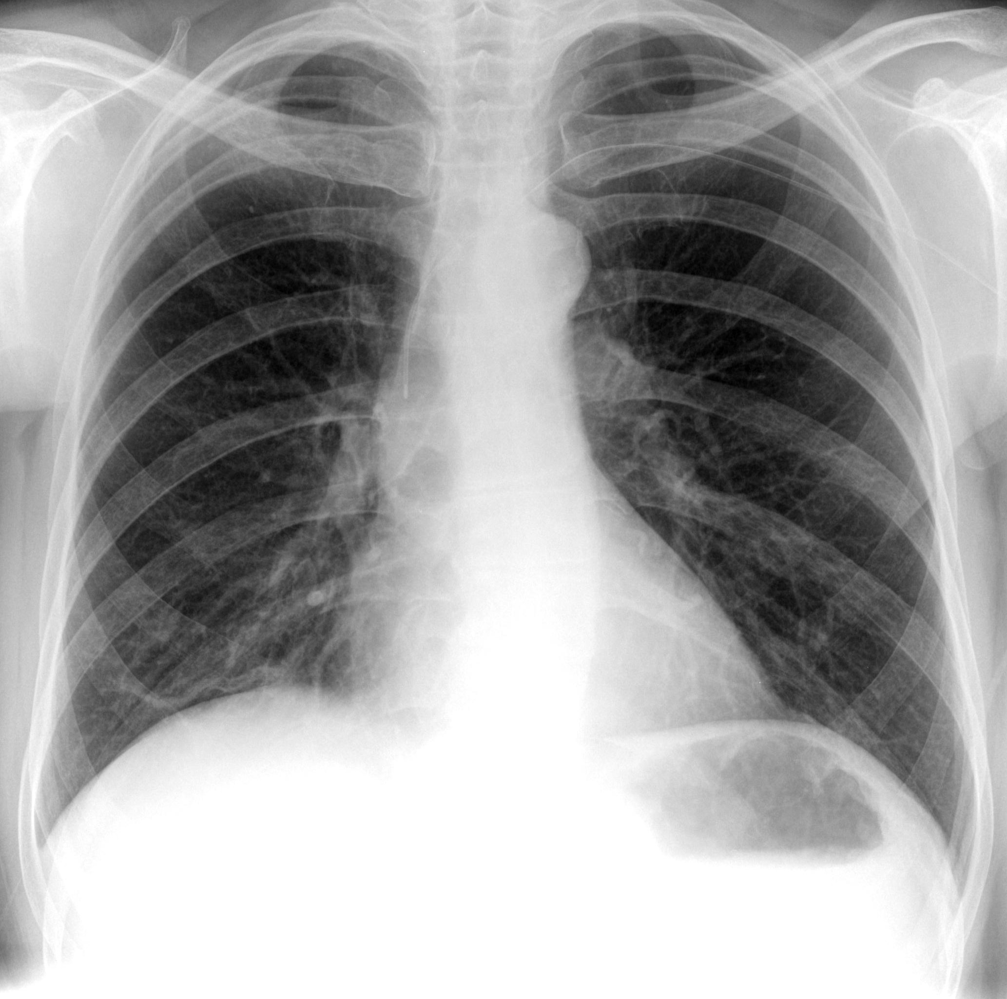 PICC Line   X-ray 2
