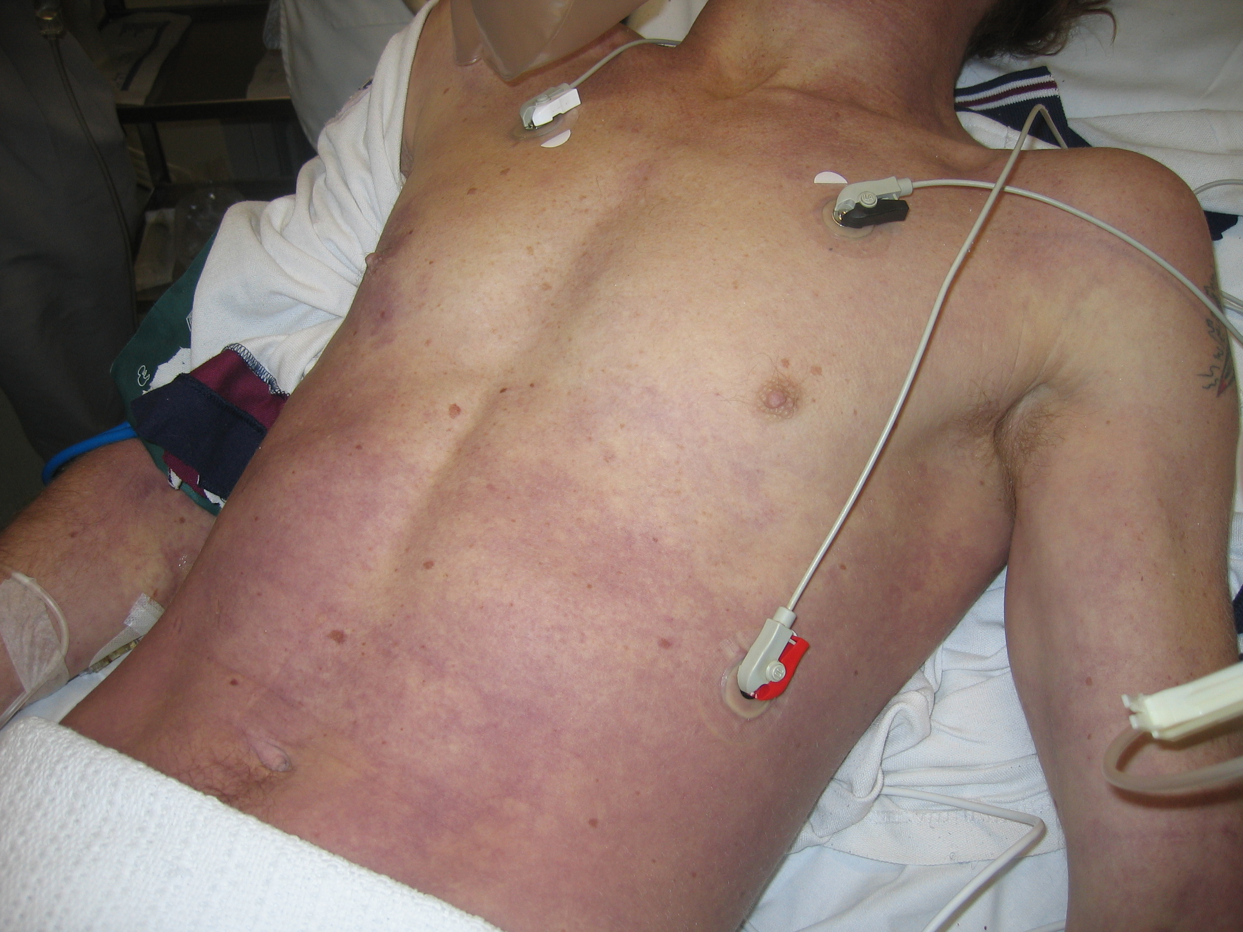 Anaphylaxis Skin Rash 2