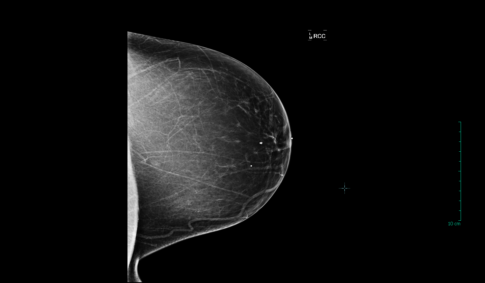 Breast   X-ray (normal)