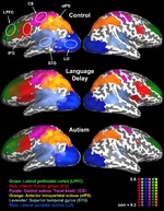Click photo to download. Caption: Interspheric correlation maps across subjects including a control group, those with language delay, and those with autism. Credit: Neuron.