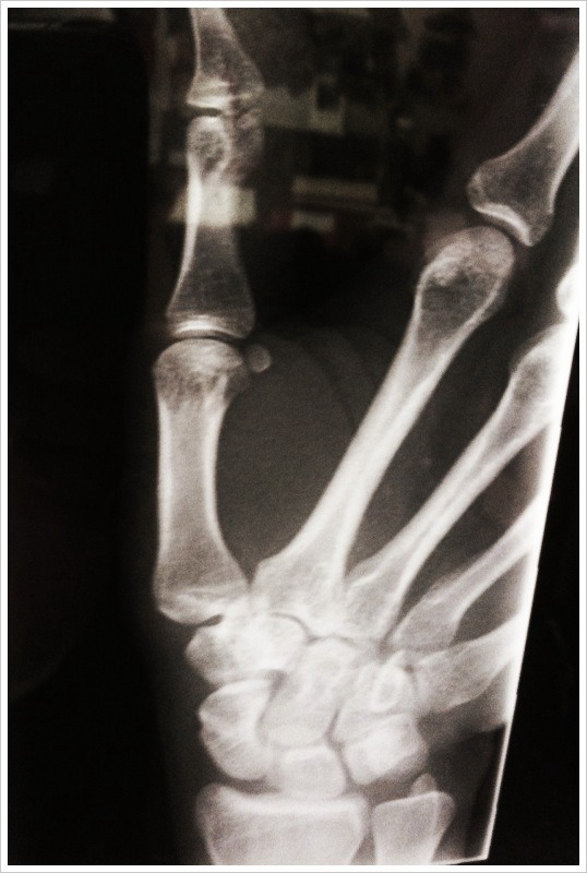 Didn't realize how much I use my thumb until it got knocked out of commission ... always cool to see supporting structure via x-ray though. Nifty technology that.