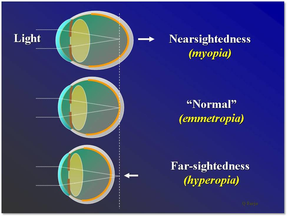 MYOPIA (NEARSIGHTEDNESS):  Nearsightedness, medically known as myopia, refers to vision that is good at close range but not at a distance. It generally occurs because the eyeball is too long or when the cornea has too much curvature. This increased distance between the cornea and retina, causes light to converge in front of the retina, rather than on it. Nearsightedness is diagnosed during routine eye exams and possible treatments include eyeglasses, contact lenses, LASIK (laser-assisted in situ keratomileusis), PRK (photorefractive keratectomy), and acrylic corneal implants. Because myopia is associated with an increased risk of serious sight-threatening conditions, such as myopic macular degeneration, retinal detachments, cataracts, and glaucoma, it is important to implement  MYOPIA CONTROL  methods at an early age, thereby reducing the risk in the future.   HYPEROPIA (FARSIGHTEDNESS):  Farsightedness, medically known as hyperopia, refers to vision that is good at a distance but not at close range. Farsightedness occurs when the eyeball is shorter than normal or when the cornea has too little curvature. This reduced distance between the cornea and retina, causes light to converge behind the retina, rather than on it. If you are mildly farsighted, your eye care provider may not recommend corrective treatment at all. However, if you are moderately or severely hyperopic, you may have several treatment options available, including eyeglasses, contacts lenses, LASIK (laser-assisted in situ keratomileusis), and PRK (photorefractive keratectomy).