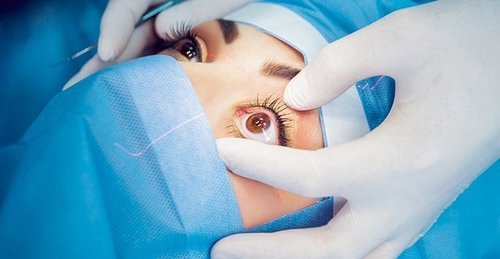 Lasik Eye Surgery Information