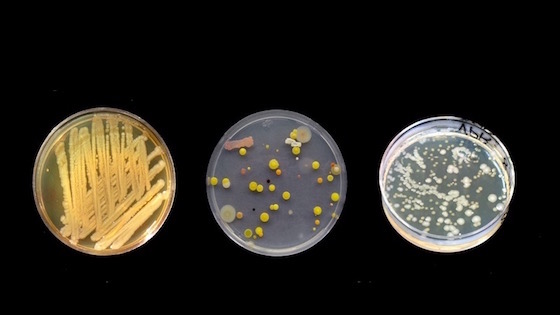 PHOTO: This photo is symbolic of the culture we live in. Each petri dish is a different culture. How's your environment affecting you?
