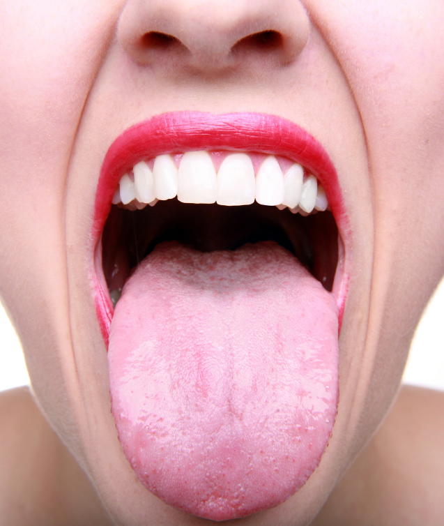 tongue sample pic.jpg